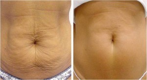 Thermage-CPT-abdomen-before-and-after