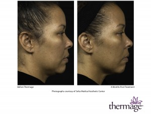 Thermage_CPT_Before_and_After_Photo