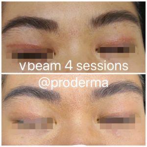 Vbeam รอยผ่าตัดตา 2 ชั้น